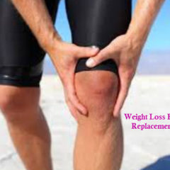 man with knee replacement surgery losing weight