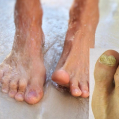 stop toe nail fungus infections naturally